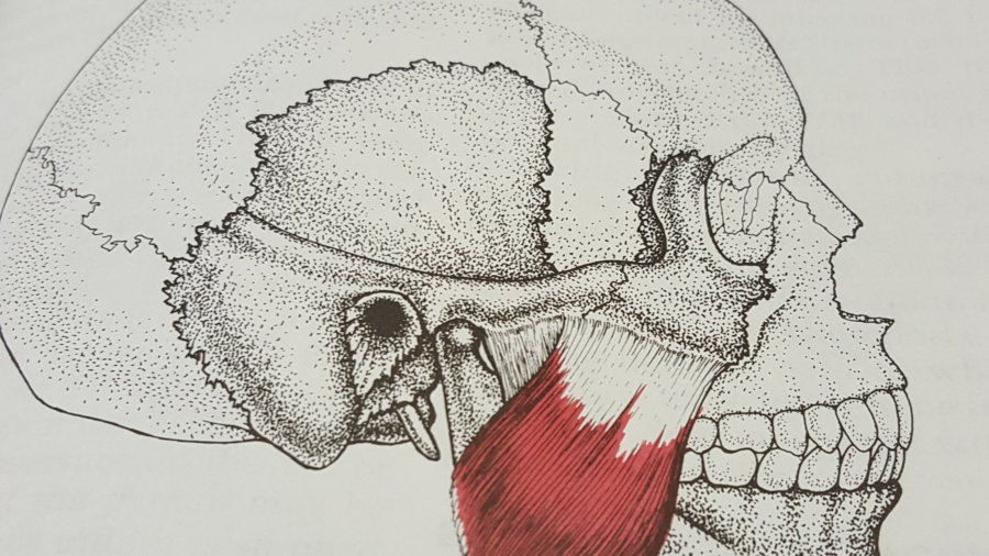 Tension Headaches: A Muscle Overlooked
